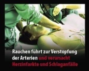 """Bild eines vermeintlichen Herzinfarkt-Patienten und der Aufschrift: """"Rauchen führt zur Verstopfung der Artierien und verursacht Herzinfarkte und Schlaganfälle"""", © Europäische Kommission"""