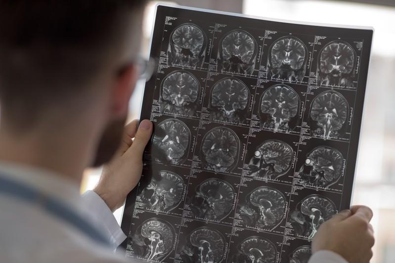 Mann beim Betrachten eines Scans des Gehirns, © Heutige bildgebende Verfahren sind so genau, dass man selbst durch Sezieren des Organs keine besseren Bilder bekäme.fotolia.com ©  Milles Studio