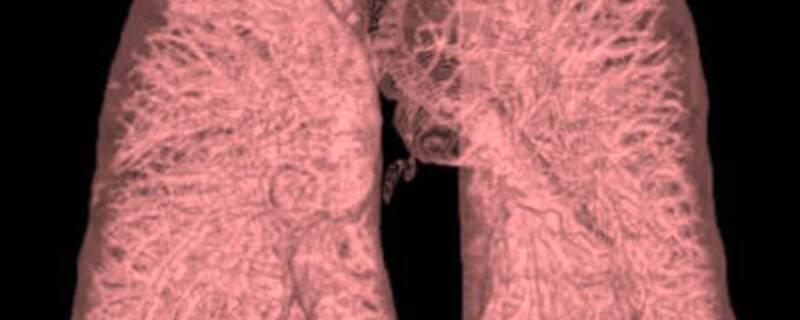 Die CT-Aufnahme einer menschlichen Lunge