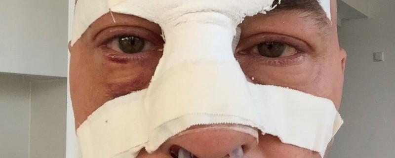 Thomas Barth trägt eine Gesichtsmaske, © So sah Thomas Barth nach seiner Gesichtsoperation aus - jetzt wurde er zum Täter gemacht Foto: Red