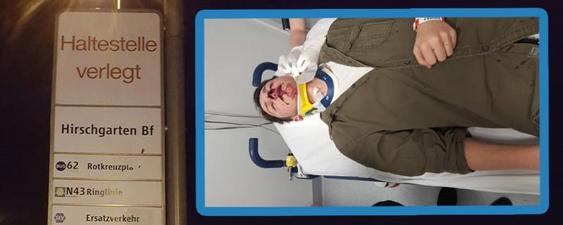 © Brüche und Verletzungen - der 17-jährige Mike nach dem Angriff