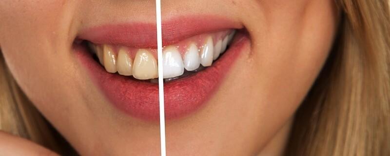Was sagen unsere Zähne über uns aus?   münchen.tv